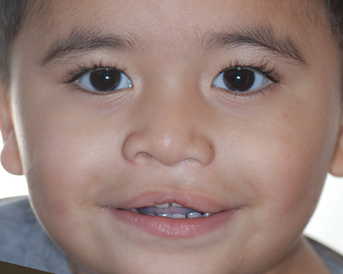 After repair of incomplete cleft lip