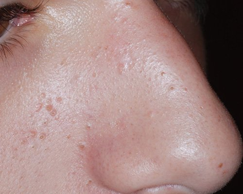 after removal of large pigmented lesion on nose