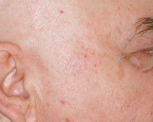 after removal of a large mole on the cheek of a male