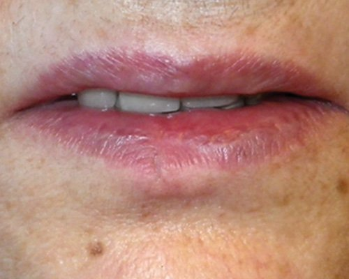 after removal of vascular lesion on the lower lip