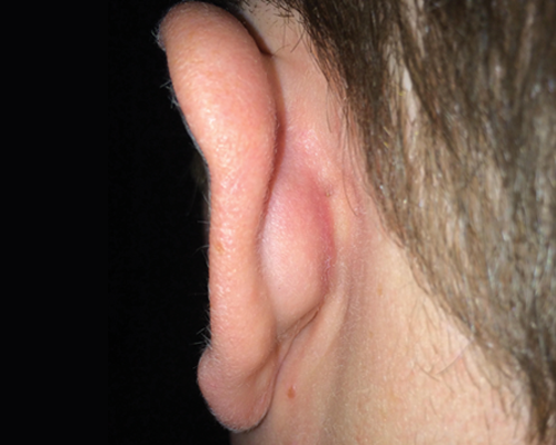 after removal of a large keloid on the ear