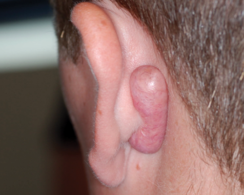 Large Keloid on the back of the ear
