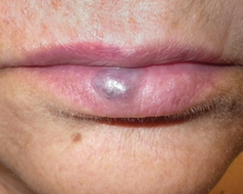large vascular lesion on the lower lip