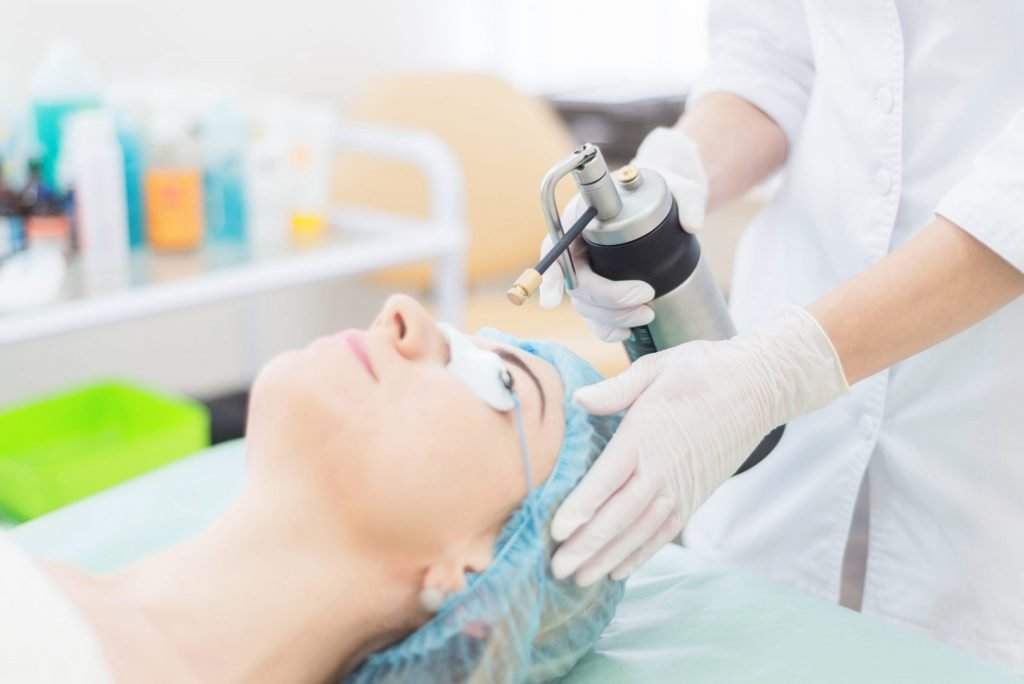 cryotherapy treatment for a mole on the face