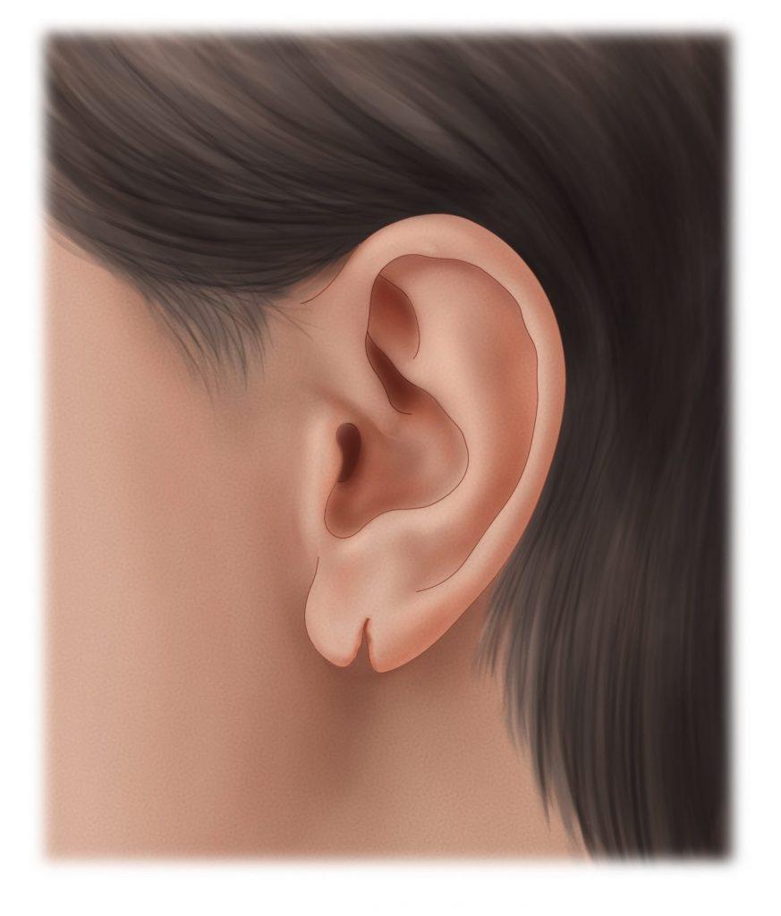 Torn earlobe before repair