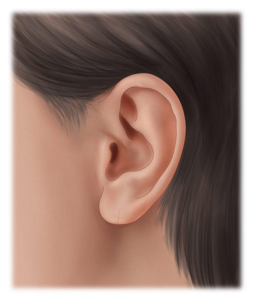 Torn earlobe after repair