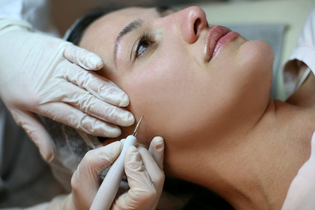 electrosurgery for mole removal on face