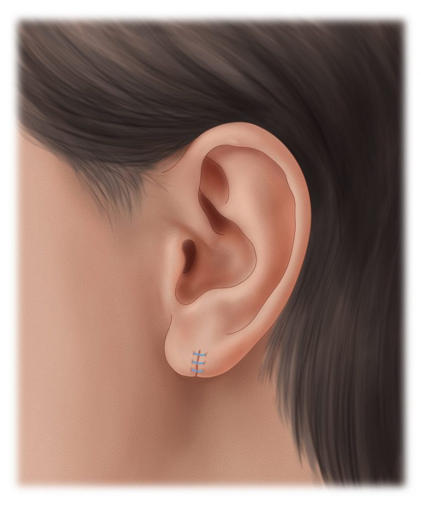 Torn earlobe with stitches after repair